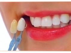 Nie ma nie ma wody na zębinie…